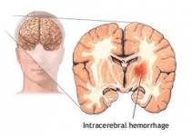 Intracerenral Hemorrhage image