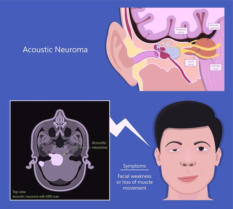 acoustic neuromas symptoms