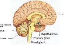 pineal-region-tumors image