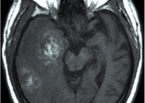 glioblastoma multiforme scan
