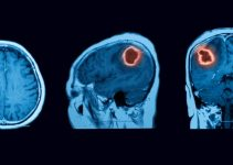 benign brain tumor mri scan
